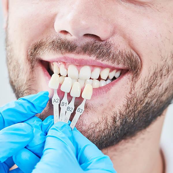 Matching dental veneers to a patient's teeth
