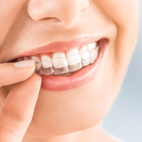 A woman putting on her Invisalign