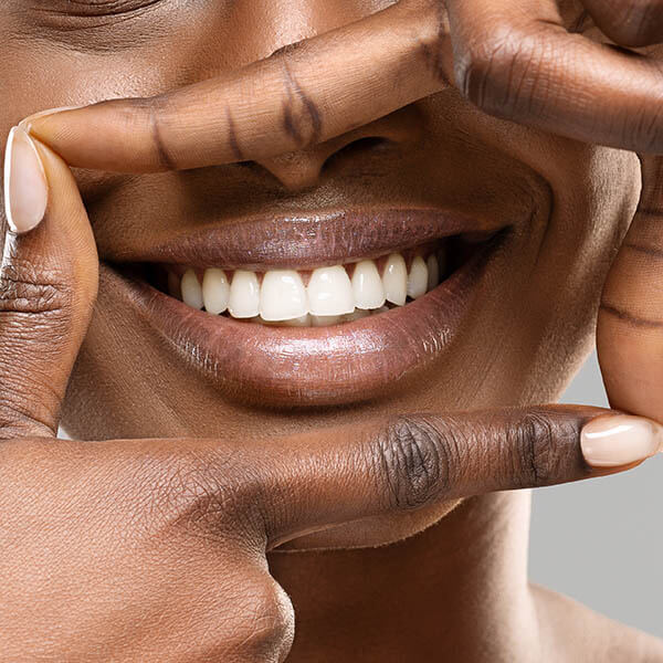 An example of teeth whitening